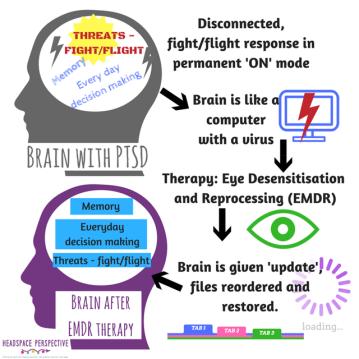 emdr_brain_computer